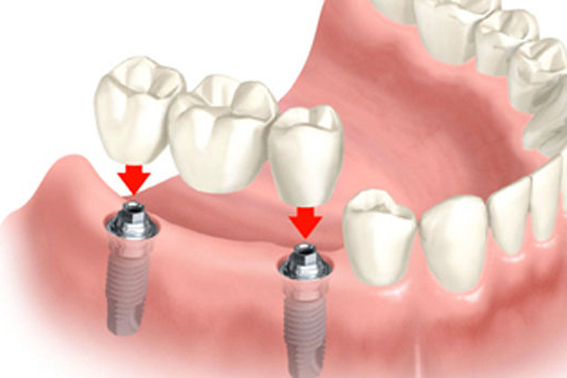 dental-bridge-implant-page1-640x350