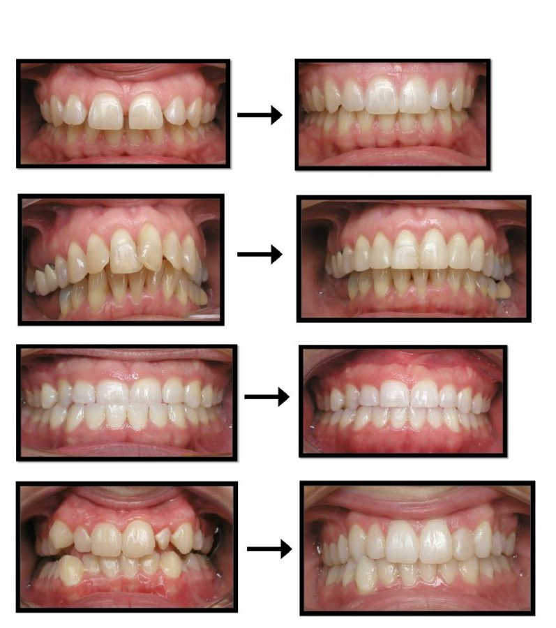vancouver-bc-invisalign-before-and-after-photos