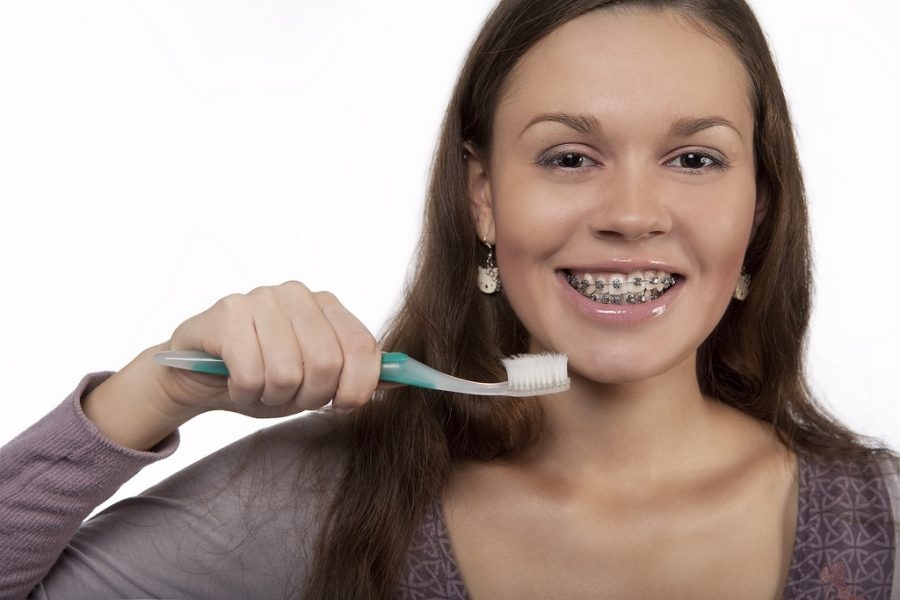 brushing_braces